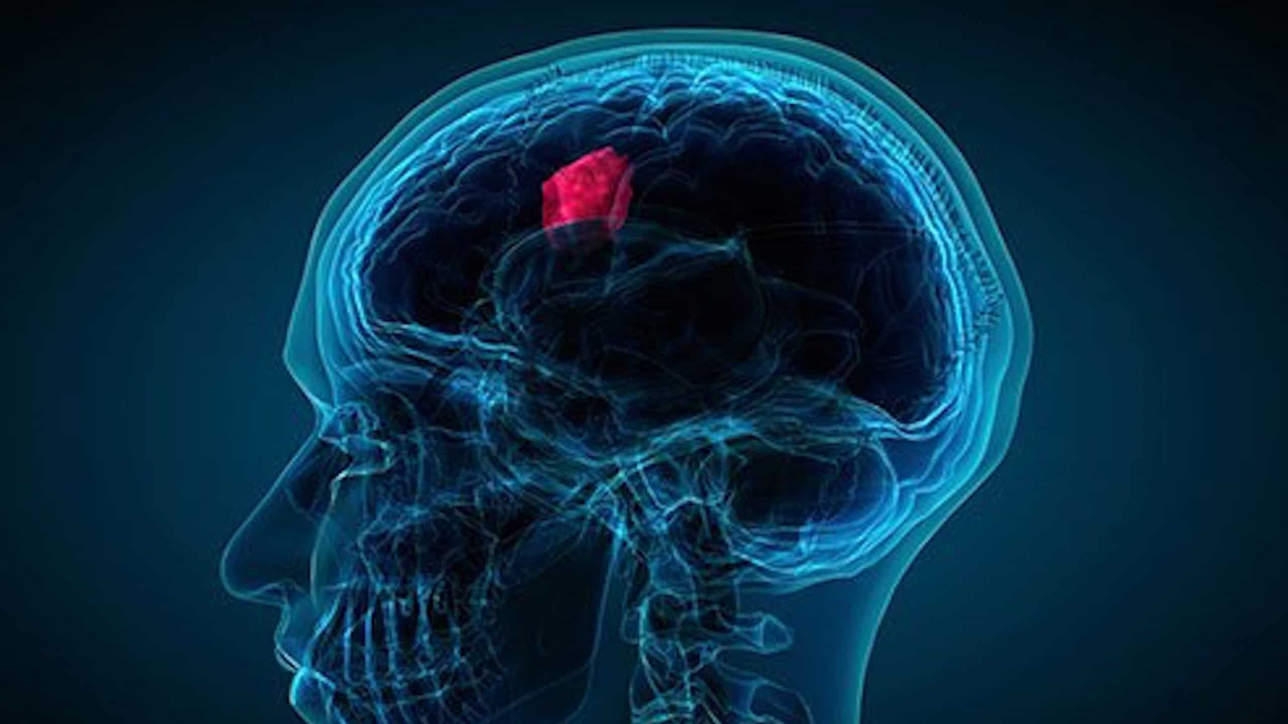 Holistic Brain Cancer Treatment in Scottsdale, Arizona